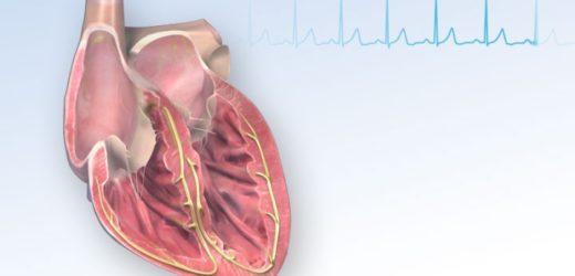 Fetal Congenital Arrhythmia vs Cardiac Monitoring